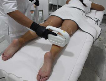 clinica depilatoria laser