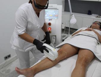 laser para depilacion madrid