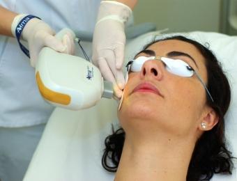 tratamientos faciales antiarrugas
