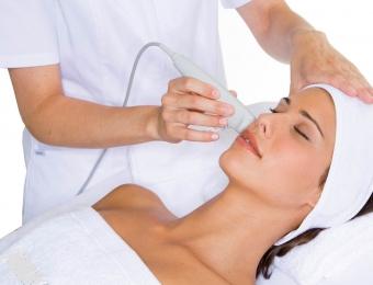 Limpieza facial alcorcon