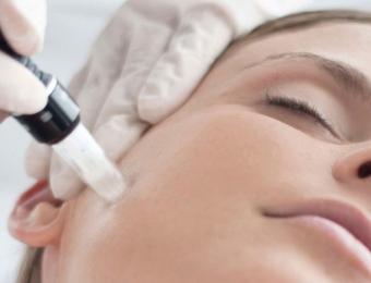 tratamientos faciales limpieza