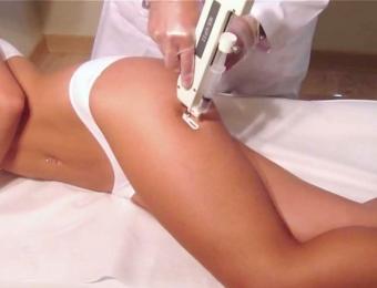 mesoterapia-paralax