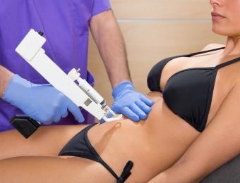 Mesoterapia en Alcorcon